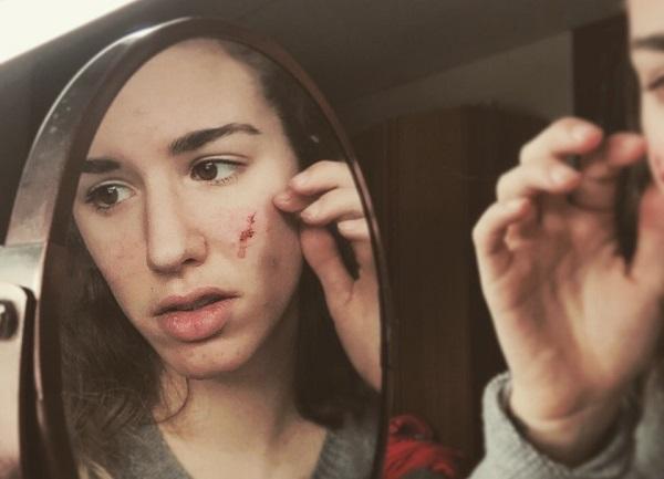 دست زدن به پوست صورت ، کاهش منافذ باز پوست