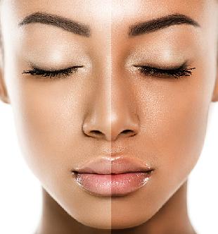 بهترین کرم ها و سرم های روشن کننده و ضد لک و بررسی مواد روشن کننده این محصولات