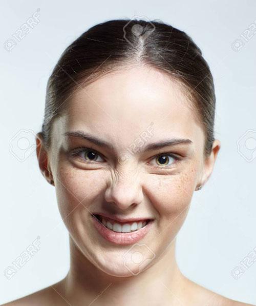 تاثیر اخم بر ایجاد چروک صورت و دور چشم