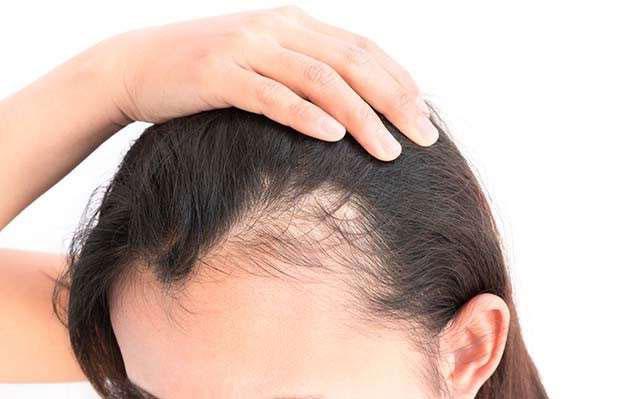 چگونه از ریزش مو جلوگیری کنیم ؟ روش های پیشگیری و درمان ریزش مو