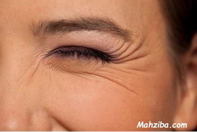 جلوگیری از چروک صورت و دور چشم