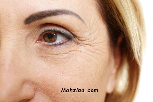 درمان چروک دور چشم و زیر چشم