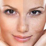 علت تشکیل و ایجاد لک های پوستی چیست ؟ درمان لک های پوستی
