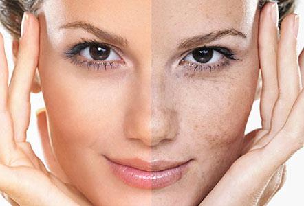 درمان لک های پوستی : بررسی علت تشکیل یا ایجاد لک صورت