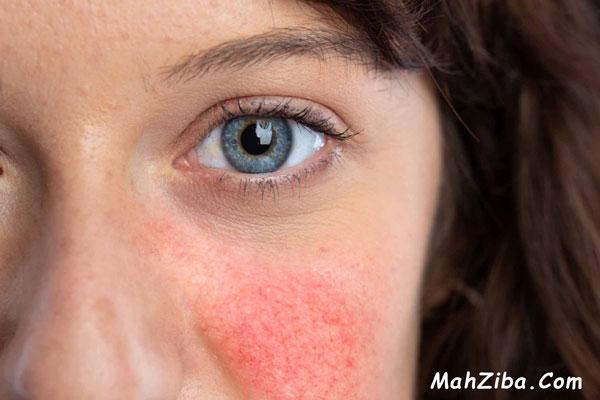 تاثیر ویتامین سی بر درمان خشکی  ، قرمزی و التهابات پوستی
