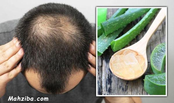 استفاده از ژل آلوورا برای تقویت مو و پیشگیری از ریزش مو