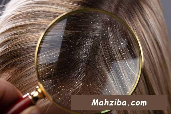 درمان خانگی شوره سر یا از بین بردن شوره سر به روش های طبیعی و خانگی