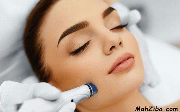 از بین بردن و درمان لک صورت با لیزر