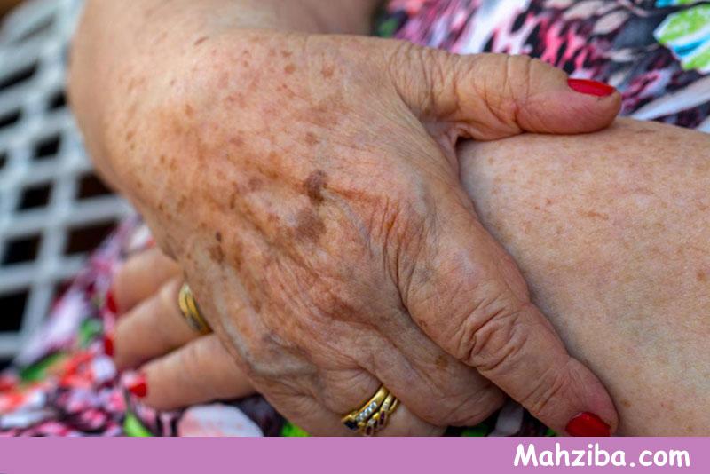 علائم لک های پوست و لکه های روی دست ، لک صورت