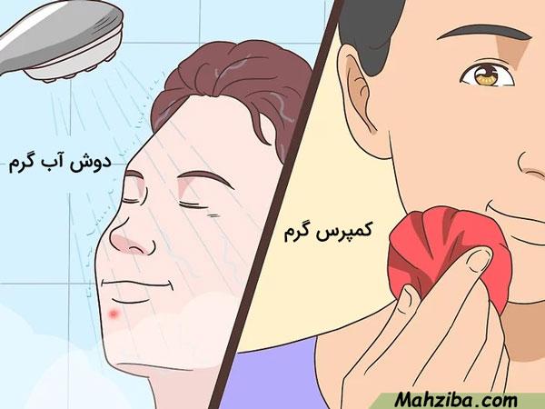 درمان جوش زیر پوستی با کمپرس آب گرم و دوش آب گرم