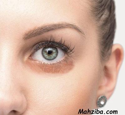 درمان سیاهی دور چشم و تیرگی های اطراف چشم به 15 روش خانگی
