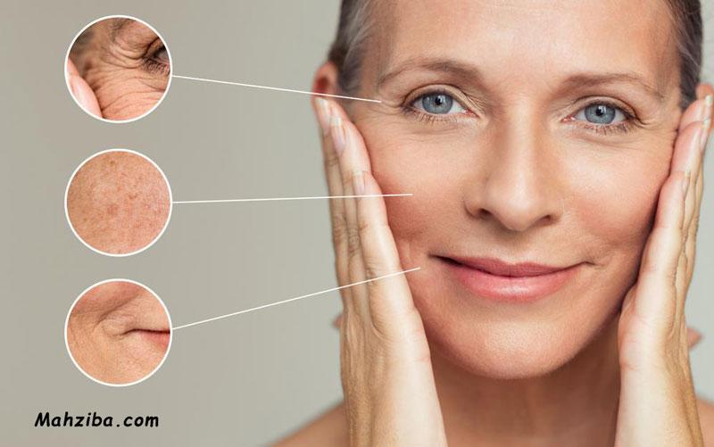 لایه برداری پوست با گلیکولیک اسید