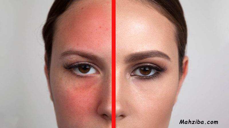قرمز شدن پوست در اثر آسیب نور خورشید