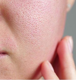 بستن منافذ باز پوست توسط پپتید ها