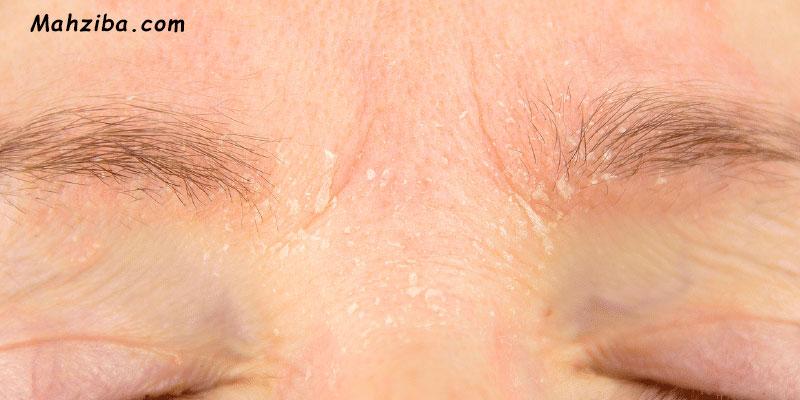 درماتیت سبوره ای ، شوره ابرو ، سرخی و التهاب اطراف بینی
