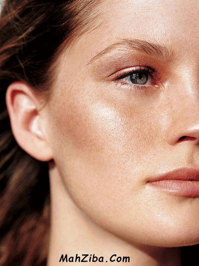 درمان مشکلات پوست ( لک صورت ) با سرم ویتامین سی
