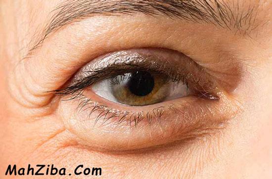 درمان یا از بین بردن پف زیر چشم