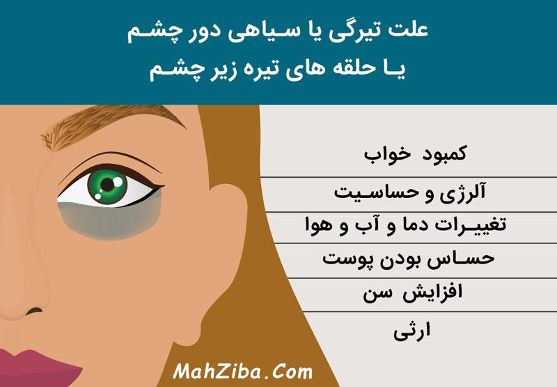 علت تیرگی یا سیاهی دور چشم